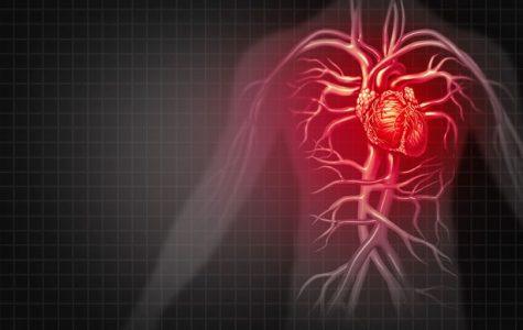 Heart Attack Drug May Decrease Damage